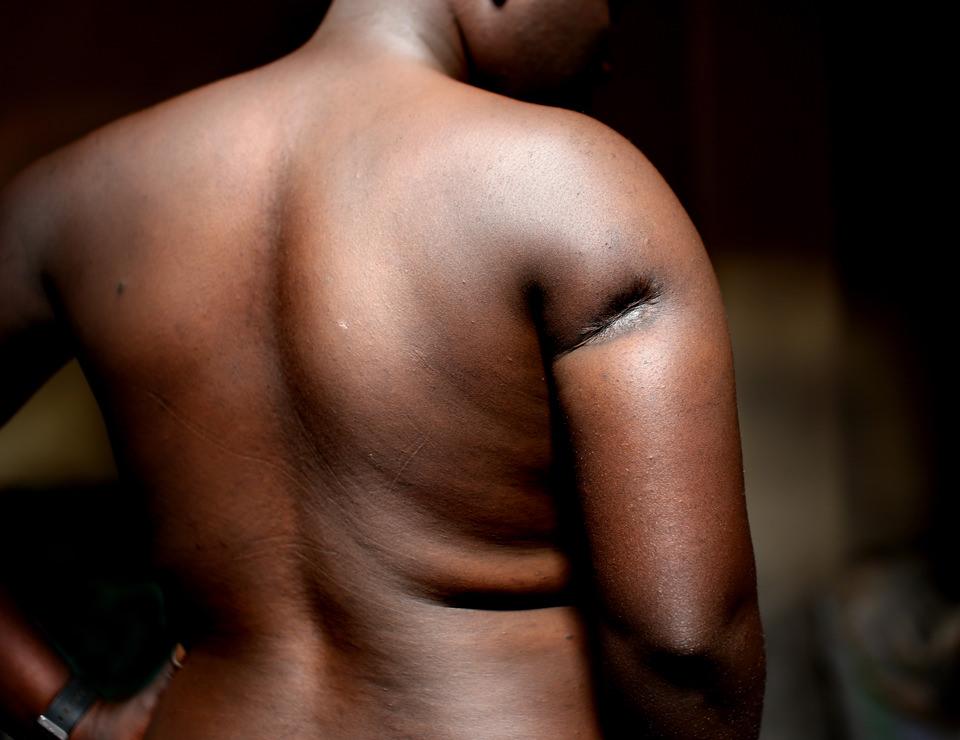 Ein Rücken. Den Oberarm zeichnet eine tiefe Narbe.