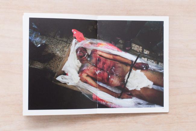 Ein toter Mensch liegt auf einer Trage, von Menschen umgeben.