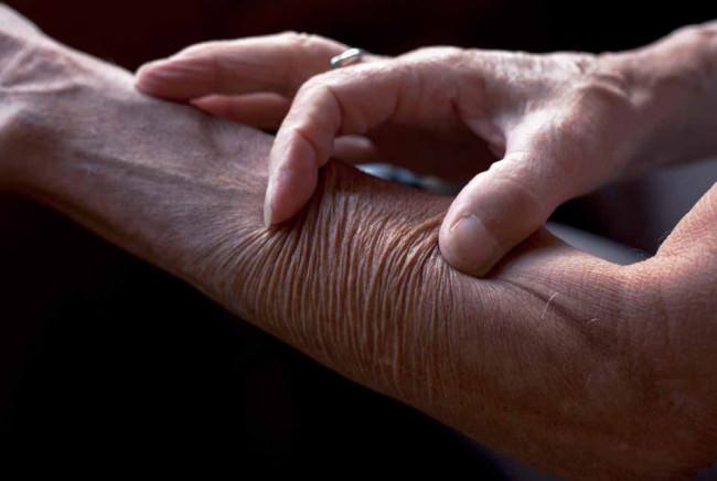 Die Haut am Unterarm wird mit zwei Fingern zusammen geschoben.