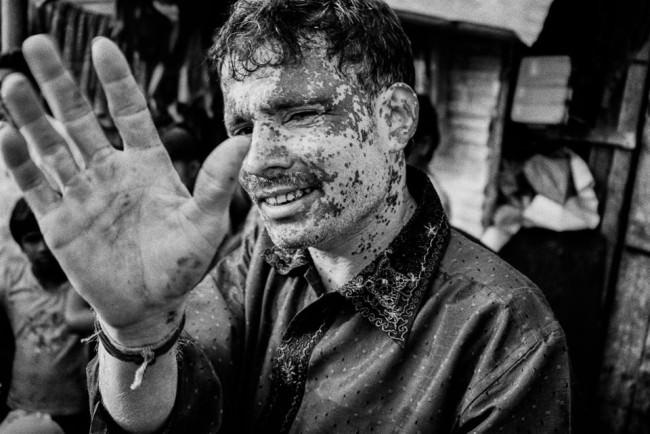 Ein Mann mit Pigmentstörung grüßt mit der Hand.