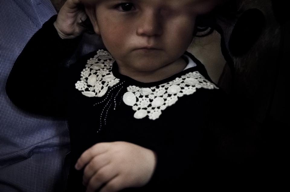 Ein Kind, bei dem man ein Auge nicht erkennen kann.