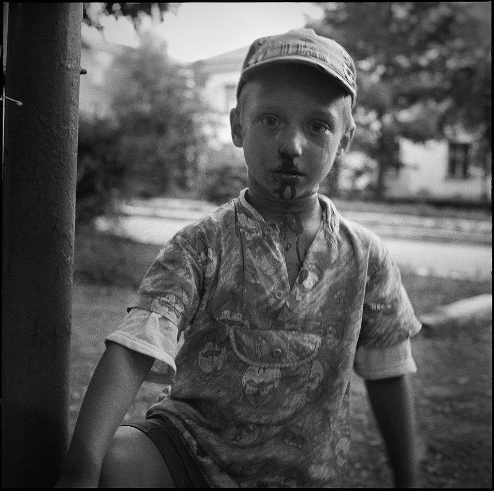 Ein Junge mit Nasenbluten