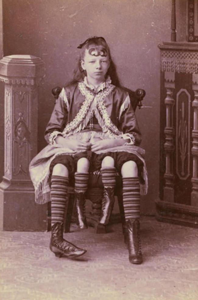 Ein Mädchen mit vier Beinen.