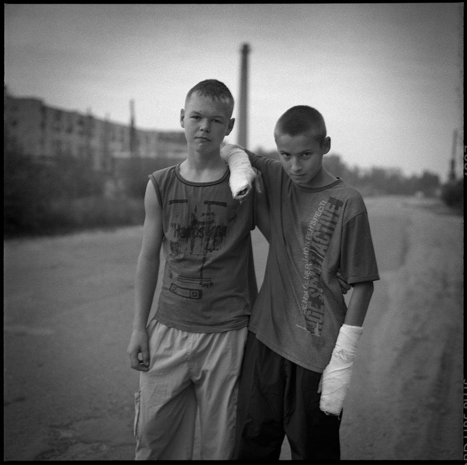 Zwei Jugendliche, einer mit gebrochenen Armen