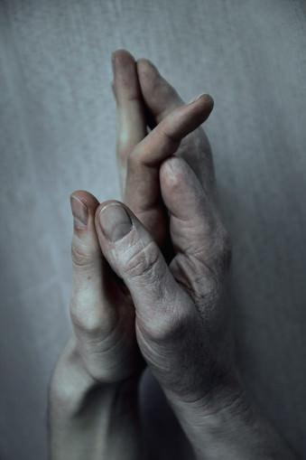 Zwei Hände mit fehlendem Finger berühren sich.