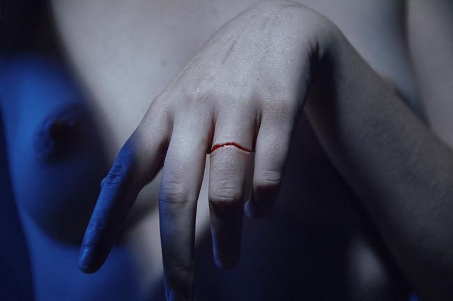 Eine Hand streckt sich richtung Kamera. Ein Finger hat eine ringförmige Wunde.