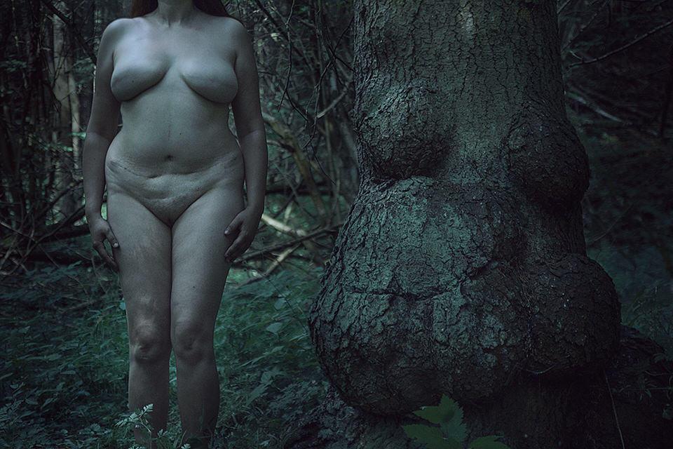 Eine Frau mit Narben steht nackt neben einem deformierten Baum.