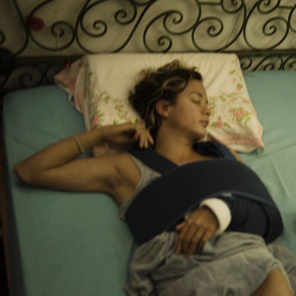 Ein Mädchen mit gebrochenem Arm beim Arzt
