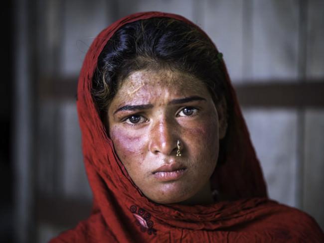 Eine Frau mit rotem Kopftuch und Narbe auf der Stirn schaut in die Kamera.