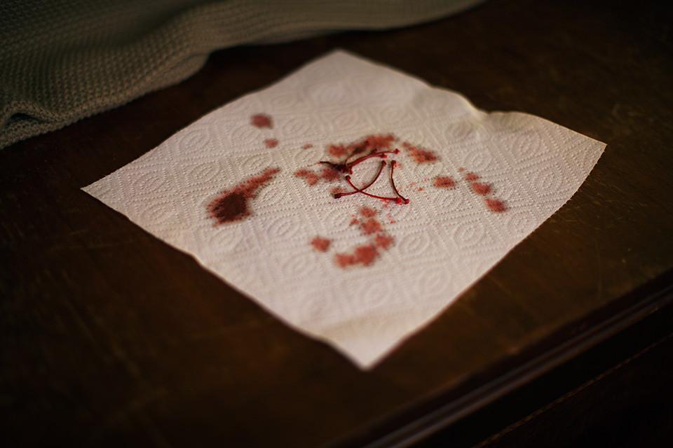 Eine Serviette mit roten Flecken und Kirschstielen.