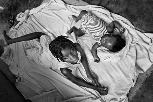 Zwei Mädchen liegen auf einem Tuch, von denen das ältere Mädchen kein rechtes Bein mehr hat.