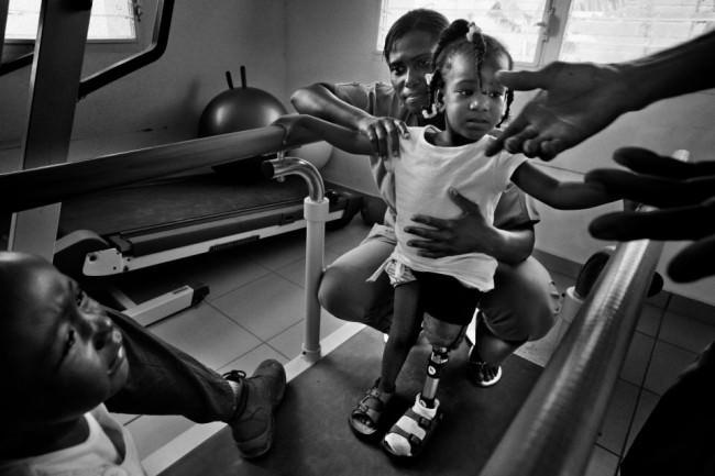 Zwei Kinder auf einer Laufbahn, im Fokus eine zweijährige mit Beinprothese.