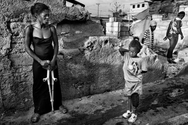Ein Mädchen mit Beinprothese steht auf der Straße.