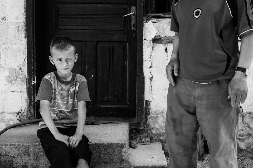Ein Junge sitzt auf einer Treppe und schaut mit einem zugekniffenen Auge in die Kamera