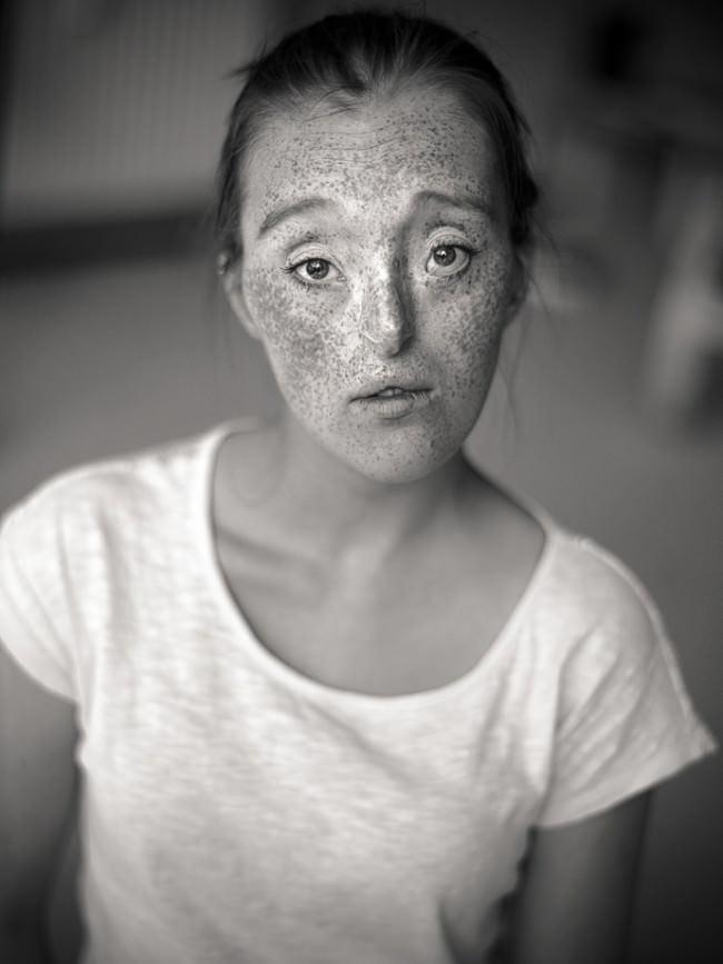 Ein Frauenportrait mit Sommersprossen