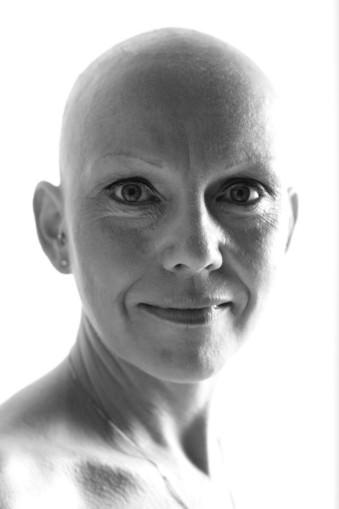 Eine Frau mit Glatze