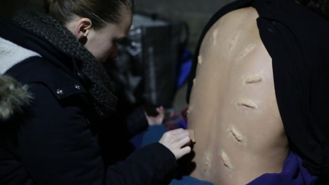 Narben werden auf einen Rücken angebracht