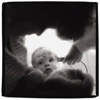 Ein Baby mit Elektroden am Kopf