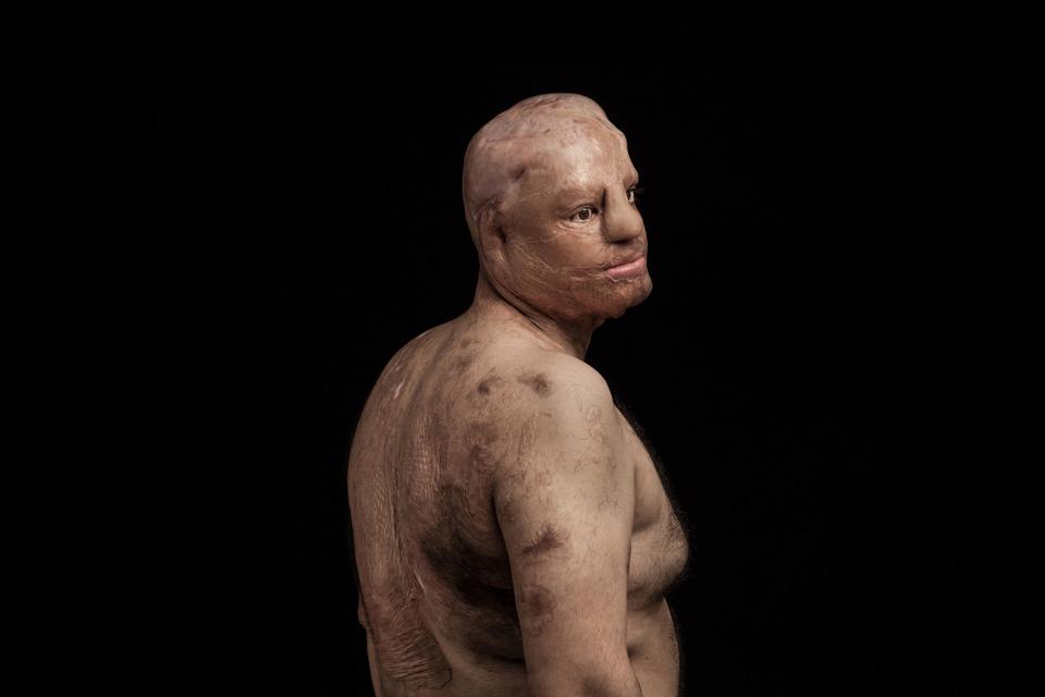 Portrait eines Säure-Opfers