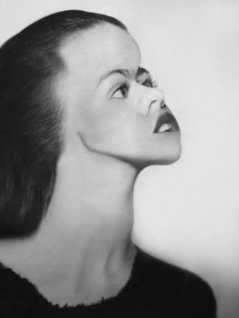 Seitenansicht einer Frau mit extrem verlängertem Hals.