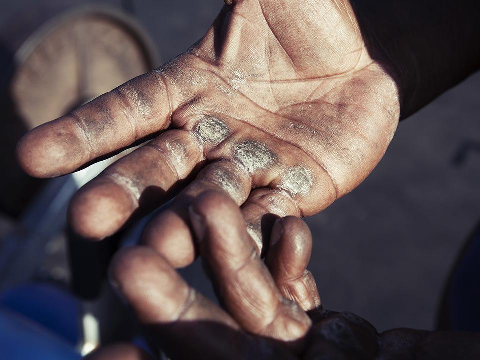 Nahaufnahme von schwielen an einer Hand.