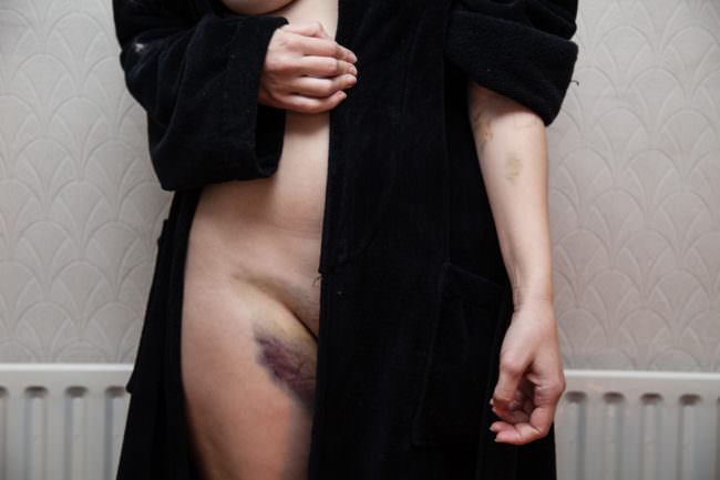 Unterleib einer Frau mit großem blauen Fleck auf dem Oberschenkel