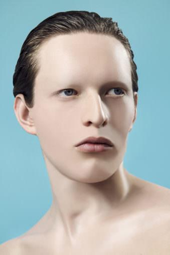 Junge mit ganz glatter Haut.