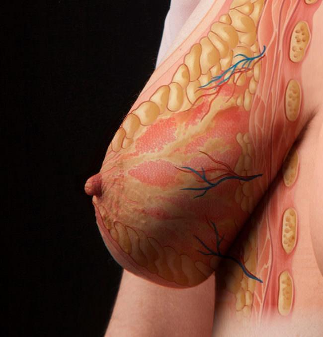 Eine Brust mit anatomischen Zeichnungen