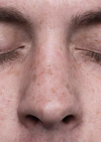 Menschliche Nase und geschlossene Augen.