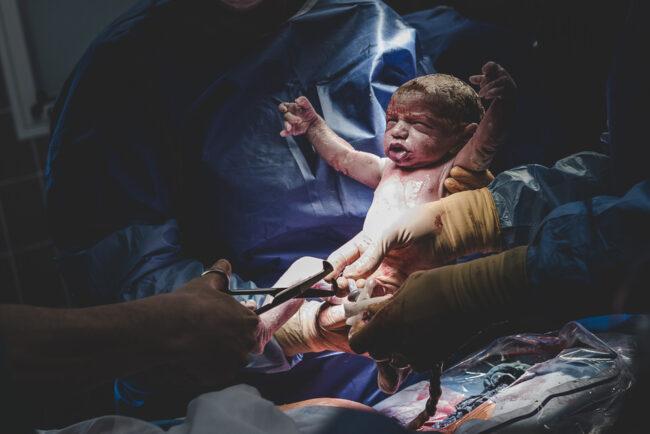 Neugeborenes beim Kaiserschnitt