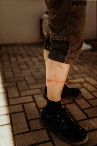 Absdrücke auf Beinen